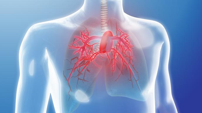 دراسة : كروموسوم «واى» يحمى من ارتفاع ضغط الدم الرئوى