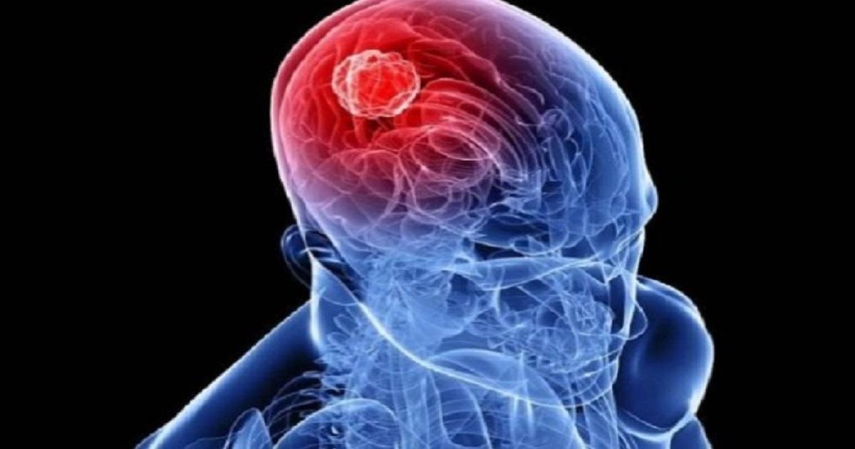 أبحاث : معدلات الانتحار أعلى بين الناجين من سرطان الرأس والرقبة