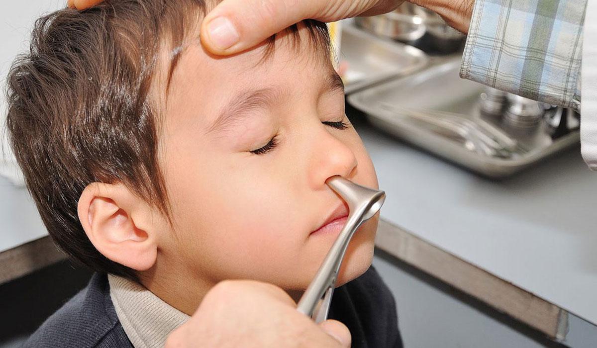 دراسة بريطانية : أنوف الأطفال تحمل أدلة على التهابات الرئة الخطيرة