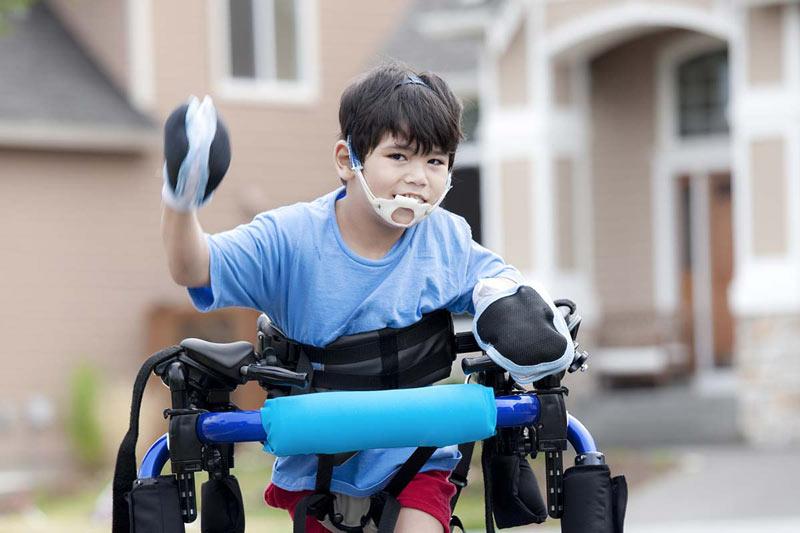 الجراحة تساعد في تحسين القدرة على المشي لأطفال مرضى الشلل الدماغي
