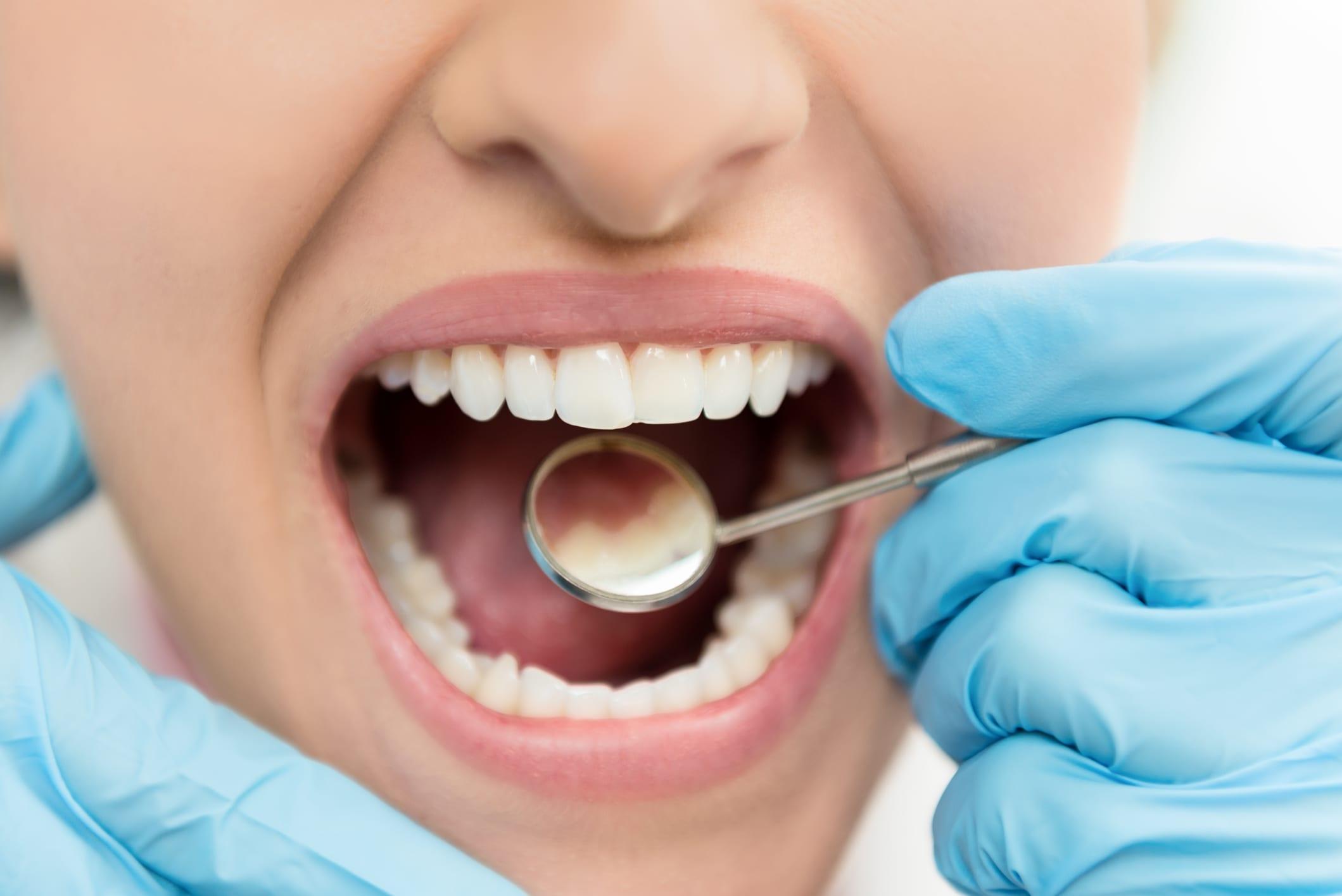 """""""جل جديد"""" يعمل على منع تسوس الأسنان"""