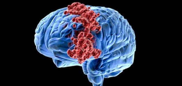 """اكتشاف هام """"يجعل"""" سرطانات الدماغ لدى الأطفال تستجيب بشكل أفضل للعلاج"""