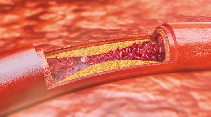 علماء أمريكيون يتمكنون من تحديد البروتين المنظم للالتهابات في مرض تصلب الشرايين