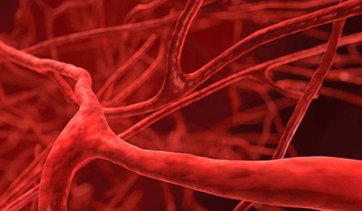 اكتشاف خلايا الأوعية الدموية المسببة للالتهابات المزمنة بين البدناء